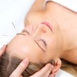 akupunktur_siegburg